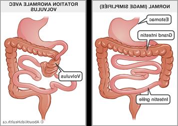 Comment faire passer une occlusion intestinale ?