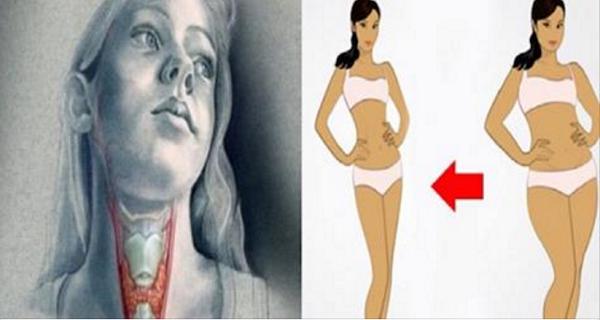 Comment perdre poids avec hypothyroidie